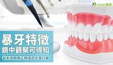 暴牙特徵鏡中觀察可得知 若未及時矯正顏值恐大受打擊