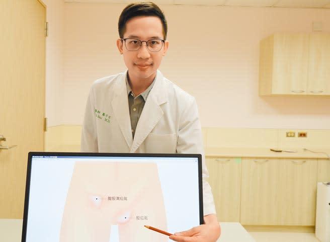 泌尿科醫師蕭子玄表示,股疝氣突起位置是在腹股溝外側、大腿上方。(陳淑芬攝)