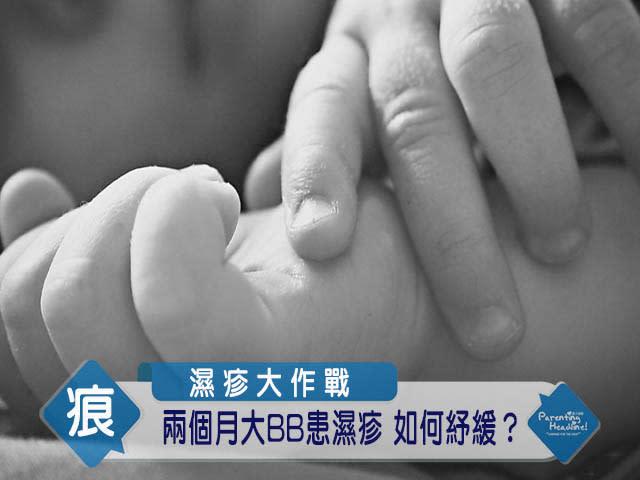 【濕疹大作戰】兩個月大BB患濕疹 如何紓緩?