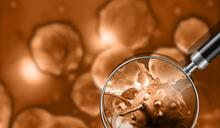 癌症醫療新曙光!中研院發現首個能殺死癌細胞新抗體