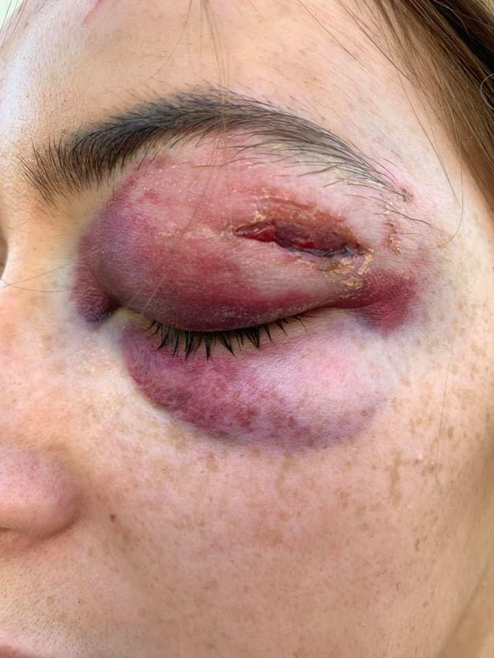 Gabrielle Walsh, 18, was on a night out with her friend Kyle McKeown in Manchester when they were violently attacked after she rejected the men. Source: Facebook