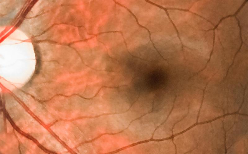 Medical photo of pathology vein occlusion