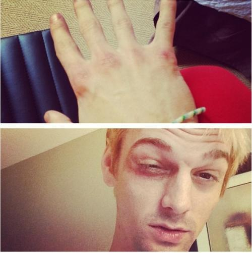 Aaron Carter Beat Down by New Kids on the Block Fans?!