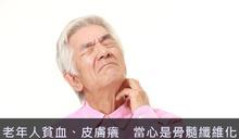 老年人貧血、皮膚癢 當心是骨髓纖維化