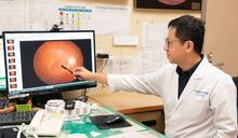 眼睛罩霧、影像歪扭 長庚:小心罹患「黃斑部皺摺」