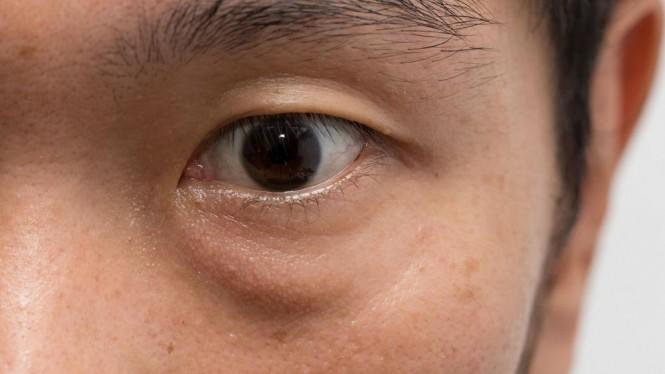 Kantong Mata Tidak Enak Dipandang, Ini Solusinya