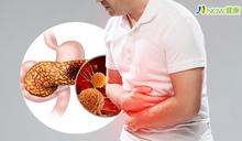 近6%胰臟癌患者有BRCA基因突變 精準治療化險為胰