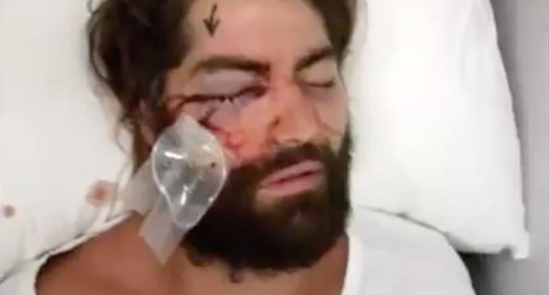 Brent Moresco, 20, and Bradley Elmore-Jeffries, 22, will serve jail time for bashing Melbourne man Elliot Harvey at a Brunswick night club because they didn't like his man-bun leaving him blind in one eye. Source: 7 News