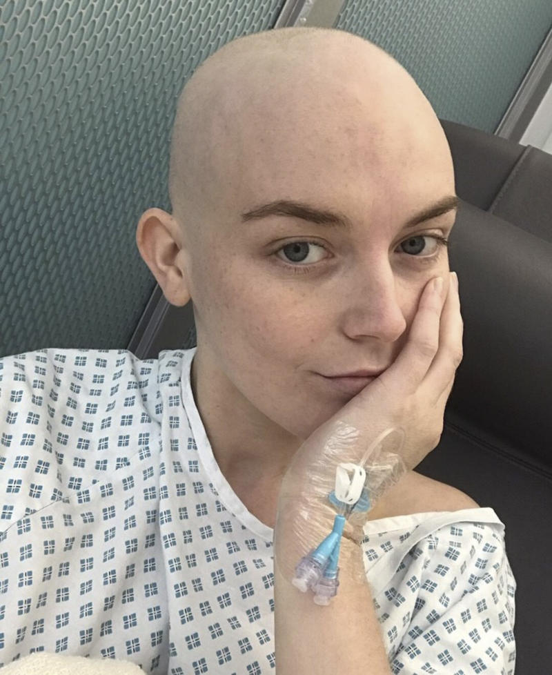 A photo of Georgie Swallow wearing a hospital gown during her treatment for Hodgkin's lymphoma.