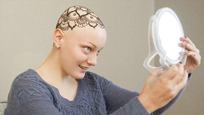 Pasien terakhir Hollie adalah Ava Gagner, gadis remaja pengidap alopecia. (foto: AP)
