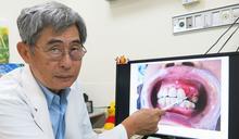 5患者服用骨鬆藥拔牙後傷口壞死