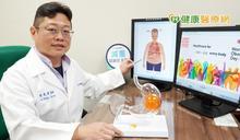 肥胖是慢性疾病! 醫師提6大點預防
