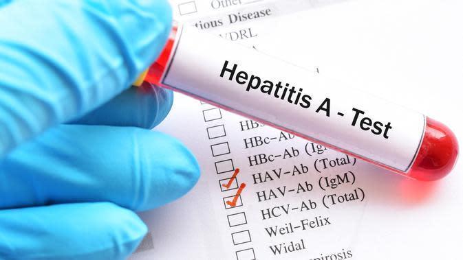 Anak-Anak Rentan Terhadap Hepatitis A