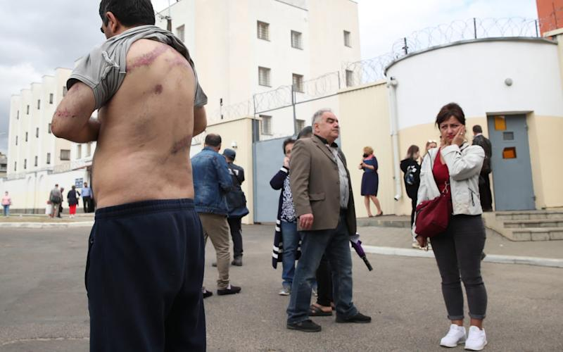 Vardan Grigryan, detained during a mass protest, lifts his shirt to show injuries after being released from a temporary detention facility