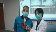 40年老菸槍男子心衰竭 葉克膜成功搶救急性重度二尖瓣膜