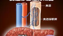 大吐血才發現有胃食道靜脈瘤! 預防方法只有一個