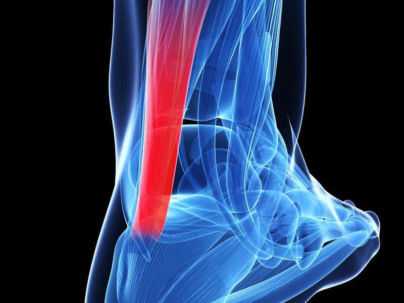 「阿基里斯腱」人體最粗壯有力的肌腱