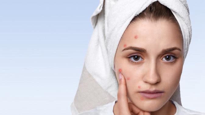 Ilustrasi wajah berjerawat. Credit: pexels.com/pixabay