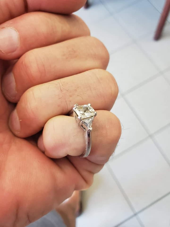 A woman shows off her engagement ring after having it surgically removed from her intestine.