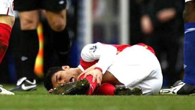 Eduardo da silva mendapat cedera yang paling parah ketika ia membela Arsenal, Peristiwa ini terjadi tahun 2008. Tekel bek Martin Taylor menyebabkan Eduardo Da Silva mengalami patah tulang fibula dan dislokasi pada pergelangan kakinya. (www.skanaa.com)