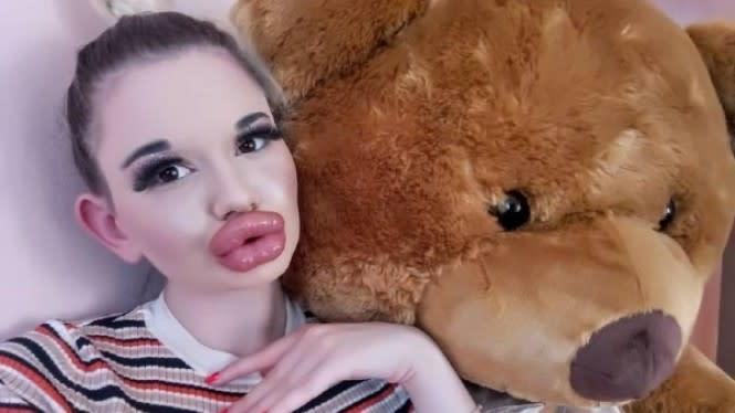 Kebanyakan Filler, Bibir Wanita Ini Bengkak Sampai Sentuh Hidung