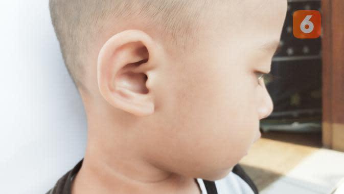 Mengenal Microtia, Gangguan Pada Telinga yang Bisa Diturunkan