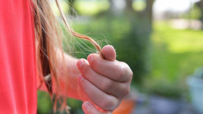 Ilustrasi rambut rontok. (Sumber: Pexels)