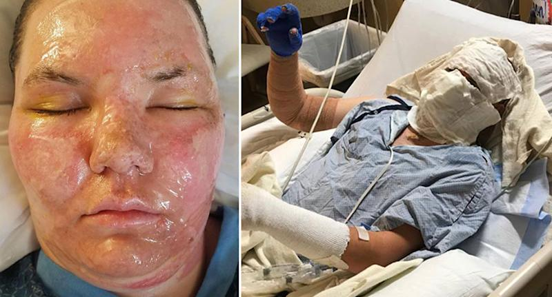 Jacob Dalton, 22, was cooking dinner on a gas burning stove near his wife Paytene, 20, at their home in Utah when a can of cooking oil on a shelf above exploded burning them. Source: Supplied/ Jacob Dalton