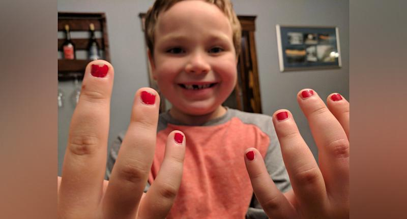 5-year-old Sam (pictured) shows off his nail polish, after experiencing school bullying