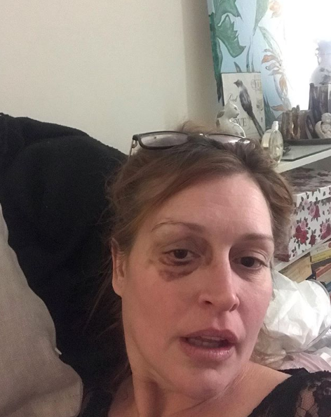 A photo of former model Tziporah Malkah with what appears to be a black eye.