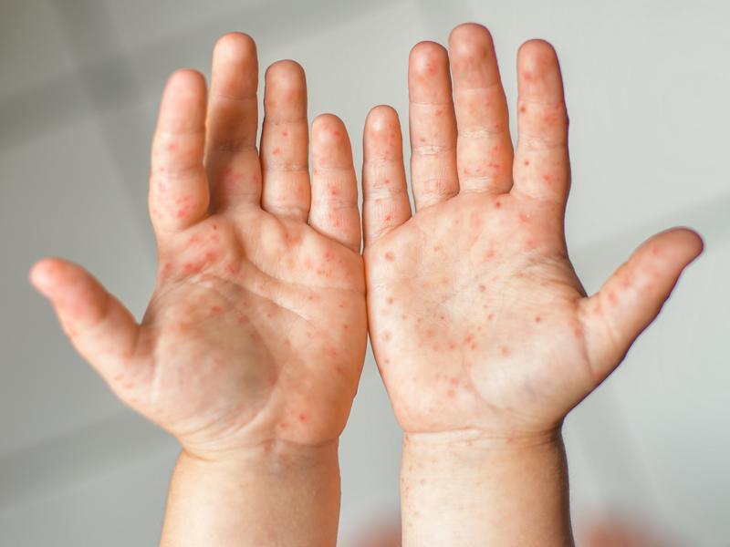這些病毒酒精殺不死!為何醫師疾呼勤洗手