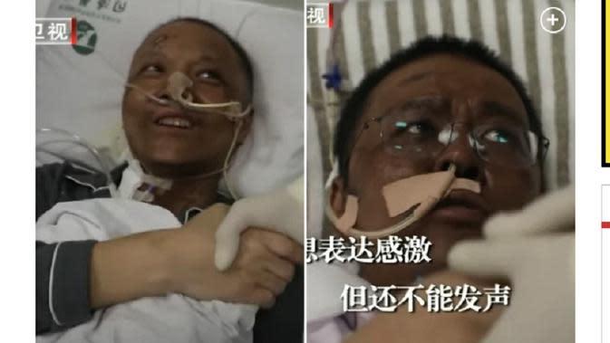 Dua dokter di Wuhan mengalami perubahan warna kulit setelah selamat dari infeksi COVID-19. (Foto: tangkapan layar New York Post).