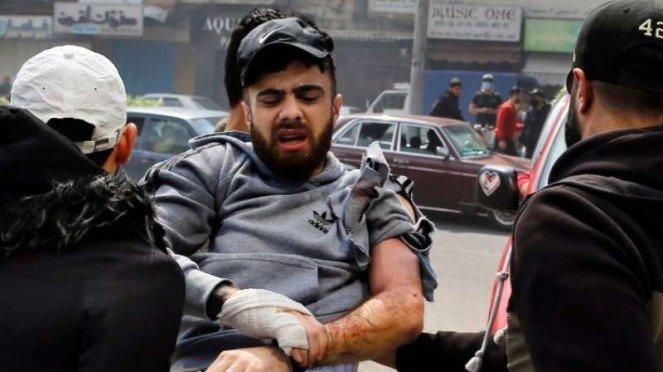 VIVA Militer: Seorang demonstran Libanon terluka