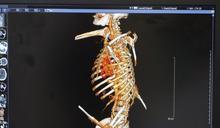 鋼筋穿胸急救查出肝癌 工人因禍得福幸運重生