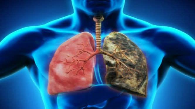 Pakar Sebut Asap Rokok Memungkinkan Tularkan COVID-19