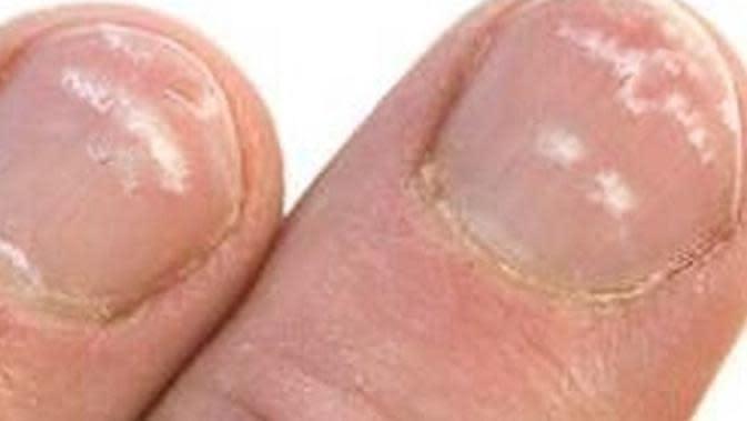 Ada beberapa penyebab bintik putih bisa muncul di kuku kaki Anda, (foto: heydoctor)