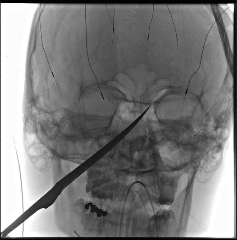 X-Ray imagery provided by The University of Kansas Health System shows the skull of Eli Gregg with a knife embedded. Source: The University of Kansas Health System via AP