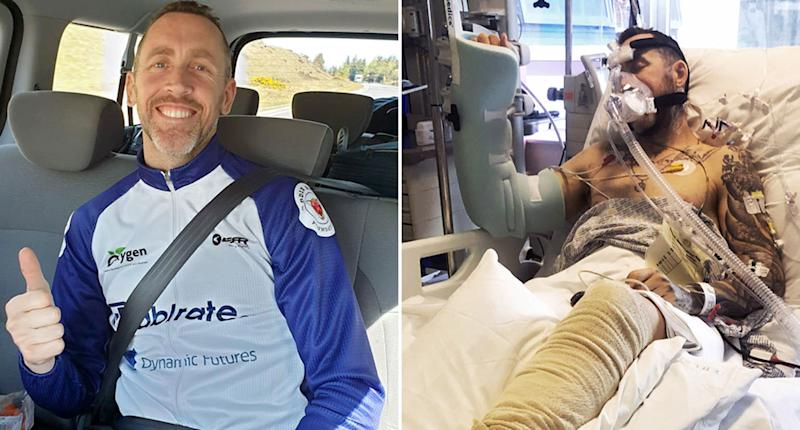 Pictured is Jean-Pierre de Villiers before and after he was the victim of a hit and run. Mr de Villiers was undertaking a charity bike ride from John O'Groats in Scotland to Land's End in Cornwall when he was hit by a car leaving him with a perforated bowel and punctured lung. He also broke both his legs.