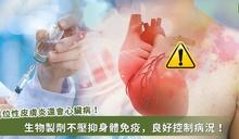 異位性皮膚炎嚴重會伴隨心血管疾病!用生物製劑治療能降發炎、保持免疫力