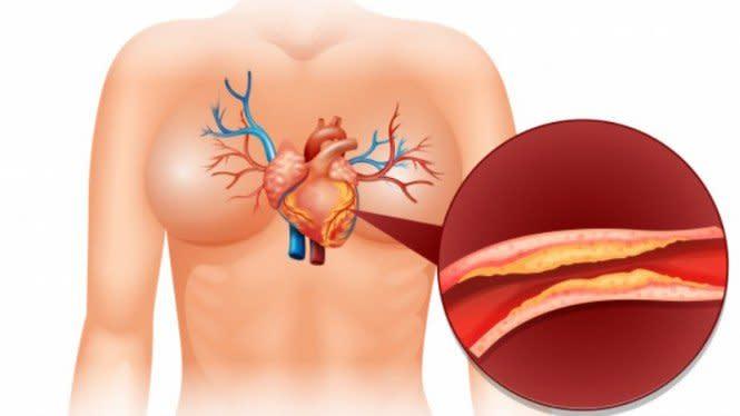 Jangan Asal Diet Keto, Efeknya Malah Timbun Kolesterol