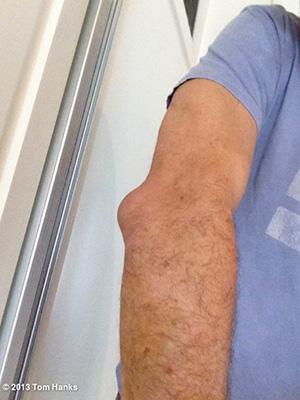 TMI! Watch Tom Hanks Get His Elbow Drained