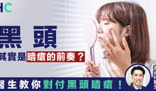 【健康資訊】黑頭其實是暗瘡的前奏? 醫生教你對付黑頭暗瘡!