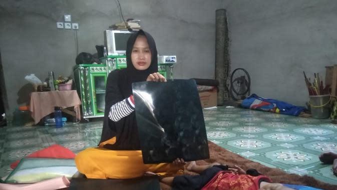 Nurbaiti, warga Kabupaten Ogan Ilir Sumsel menunjukkan hasil rontgen putera ketiganya yang divonis mengidap kanker tulang (Liputan6.com / Nefri Inge)