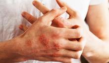 乾癬不會傳染!但會遺傳嗎? 皮膚科醫揭「罹病原因」:狂掉頭皮屑要注意
