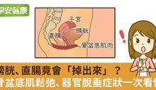 器官竟會「從下面掉出來」?鬆弛、脫垂症狀一次看懂