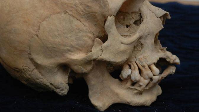 Ilustrasi tengkorak manusia Romawi Kuno dengan kerusakan tulang hidung. (Sumber ANSA.it)