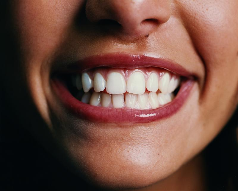 We love coffee, but our teeth don't. (Credit: Getty)
