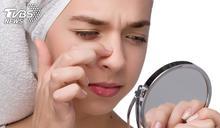 19歲女擠鼻子痘痘…細菌竄顱腦險喪命 醫揭恐怖後果
