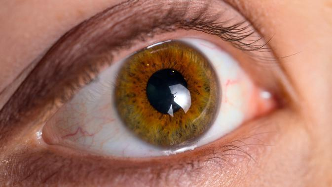 Penyakit Mata Glaukoma (sumber: iStockphoto)