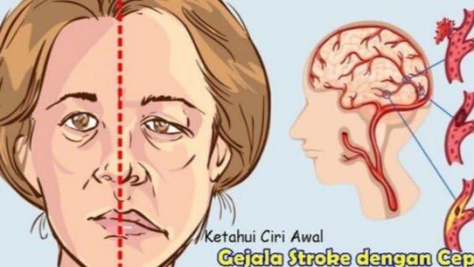 6 Cara Mencegah Serangan Stroke
